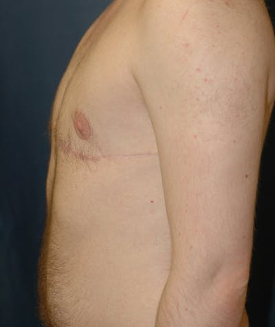 Masculinizing Surgery Gallery - Patient 4862084 - Image 4