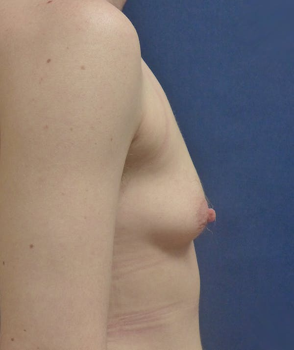 Masculinizing Surgery Gallery - Patient 4862084 - Image 5