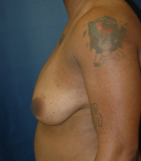 Masculinizing Surgery Gallery - Patient 4862085 - Image 1