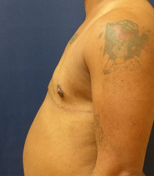 Masculinizing Surgery Gallery - Patient 4862085 - Image 2