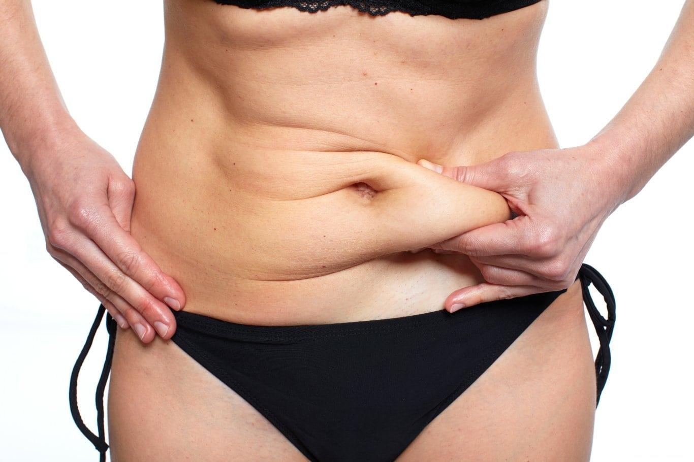 Medical Benefits of Tummy Tuck   Houston Plastic Surgery