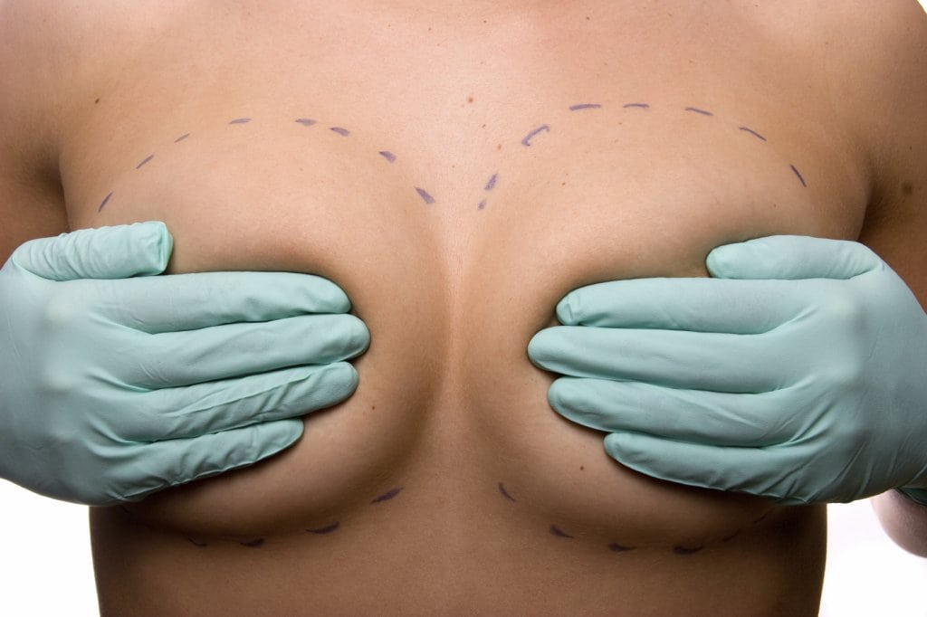 To learn about postoperative care of breast enlargement incisions, please call Houston plastic surgeon Dr. Michael Eisemann at (713) 766-0071