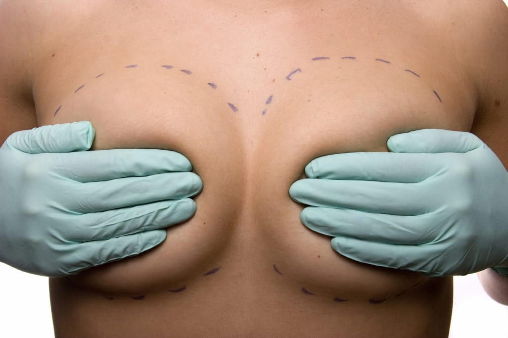 Houston breast implant incision options