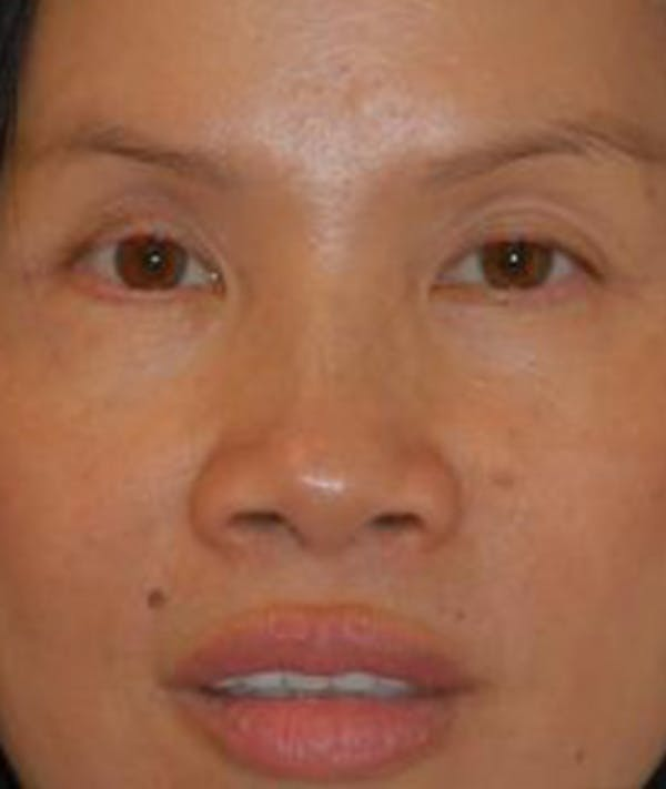 Brow Lift Results Houston