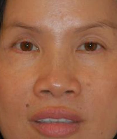 Browlift Gallery - Patient 4861454 - Image 2