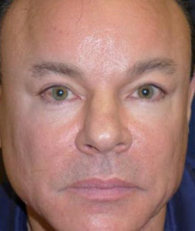 Eyelid Lift (Blepharoplasty) Gallery - Patient 4861524 - Image 2