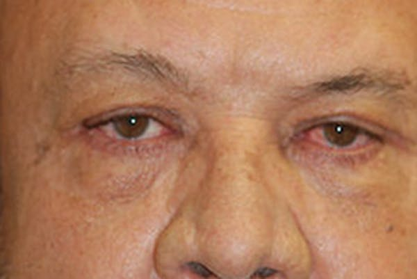 Eyelid Lift (Blepharoplasty) Gallery - Patient 4861535 - Image 2