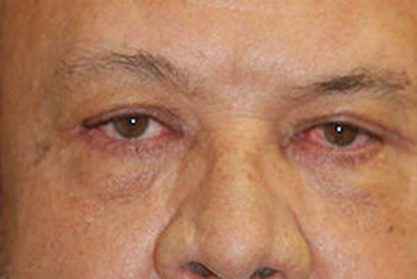 Eyelid Lift (Blepharoplasty) Gallery - Patient 4861535 - Image 2