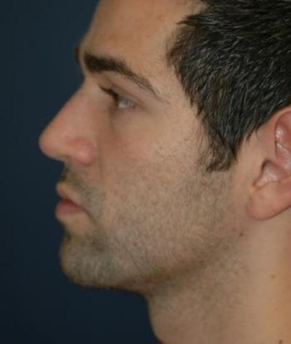 Functional Rhinoplasty Houston