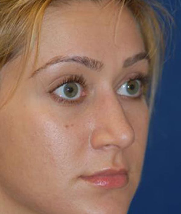 Rhinoplasty Gallery - Patient 4861555 - Image 2