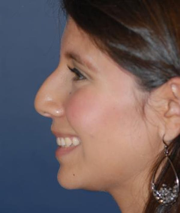 Rhinoplasty Gallery - Patient 4861544 - Image 1