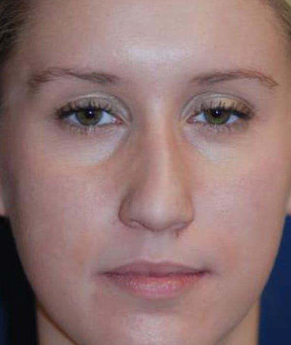 Rhinoplasty Gallery - Patient 4861568 - Image 3
