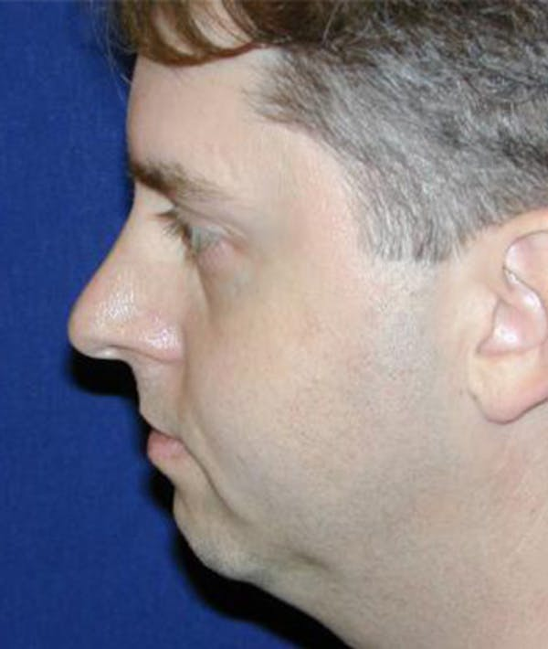 Rhinoplasty Gallery - Patient 4861570 - Image 1