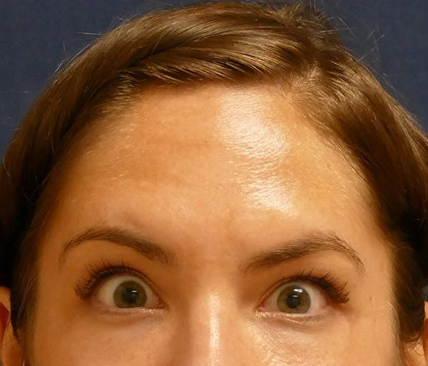 Injectables Gallery - Patient 11869673 - Image 2