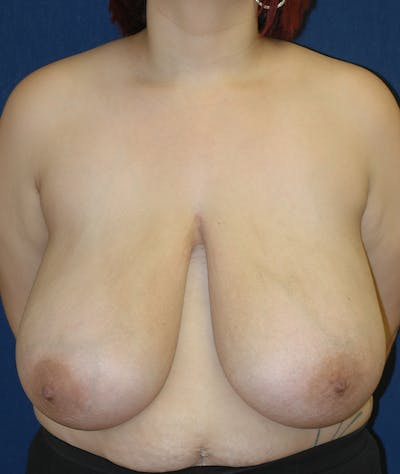 Breast Reduction Gallery - Patient 11869677 - Image 1