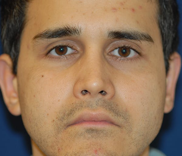 Ear Pinning (Otoplasty) Gallery - Patient 11869683 - Image 2