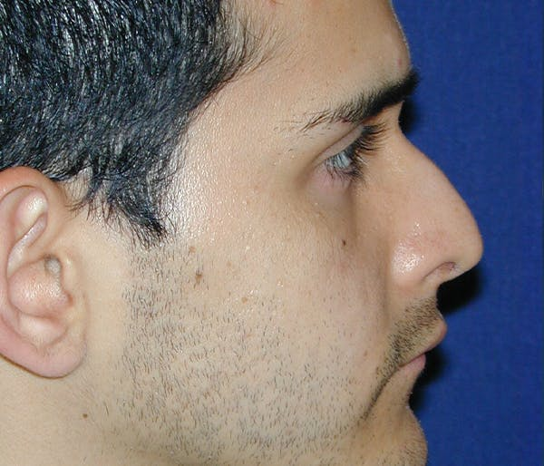 Ear Pinning (Otoplasty) Gallery - Patient 11869683 - Image 3