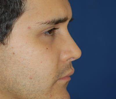 Ear Pinning (Otoplasty) Gallery - Patient 11869683 - Image 4