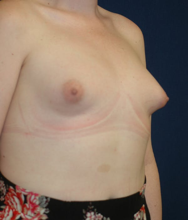 Feminizing Surgery Gallery - Patient 11869744 - Image 1