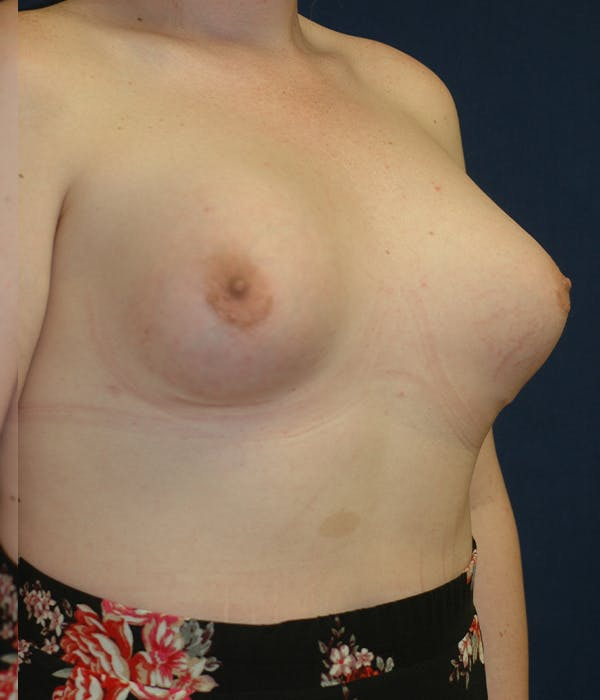 Feminizing Surgery Gallery - Patient 11869744 - Image 2