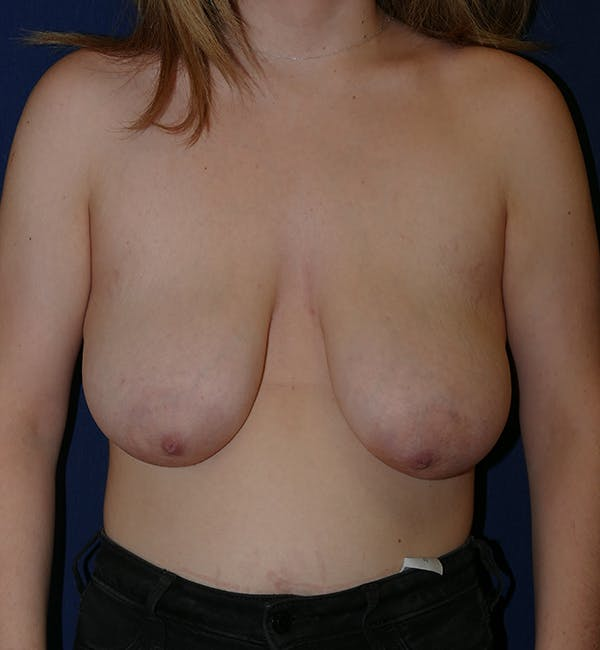 Breast Lift Gallery - Patient 11869767 - Image 1