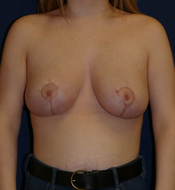 Breast Lift Gallery - Patient 11869767 - Image 2