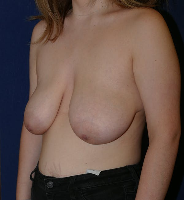 Breast Lift Gallery - Patient 11869767 - Image 3