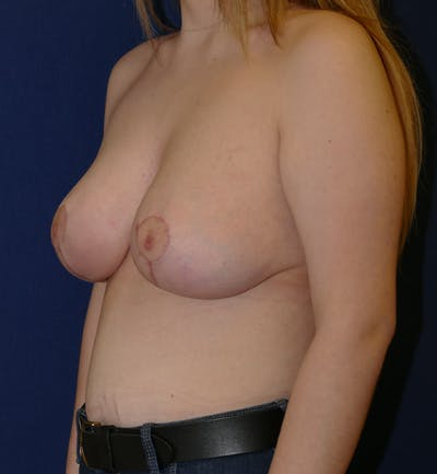 Breast Lift Gallery - Patient 11869767 - Image 4