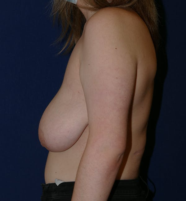 Breast Lift Gallery - Patient 11869767 - Image 5