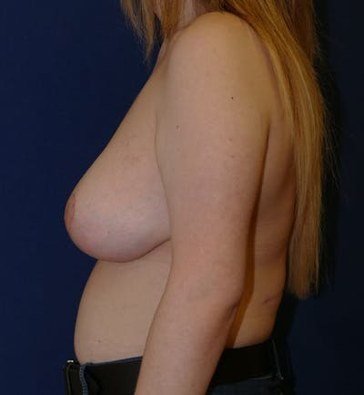 Breast Lift Gallery - Patient 11869767 - Image 6