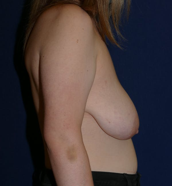 Breast Lift Gallery - Patient 11869767 - Image 7
