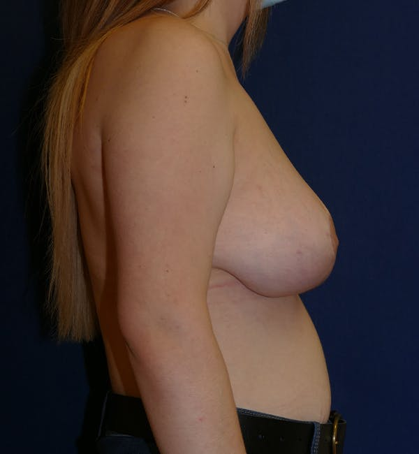 Breast Lift Gallery - Patient 11869767 - Image 8