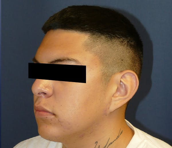 Ear Pinning (Otoplasty) Gallery - Patient 11869770 - Image 3