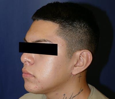 Ear Pinning (Otoplasty) Gallery - Patient 11869770 - Image 4