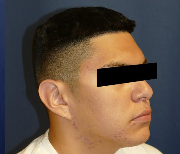 Ear Pinning (Otoplasty) Gallery - Patient 11869770 - Image 5