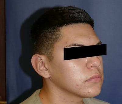 Ear Pinning (Otoplasty) Gallery - Patient 11869770 - Image 6