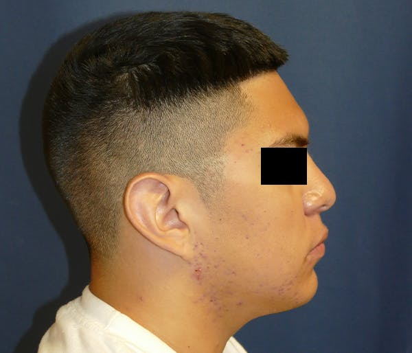 Ear Pinning (Otoplasty) Gallery - Patient 11869770 - Image 7