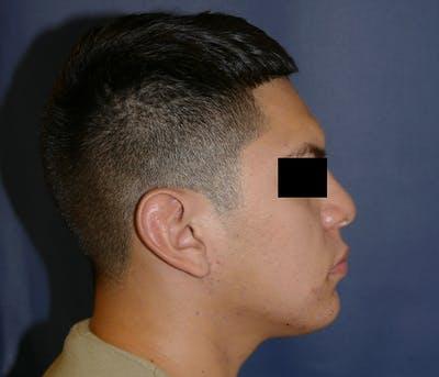 Ear Pinning (Otoplasty) Gallery - Patient 11869770 - Image 8