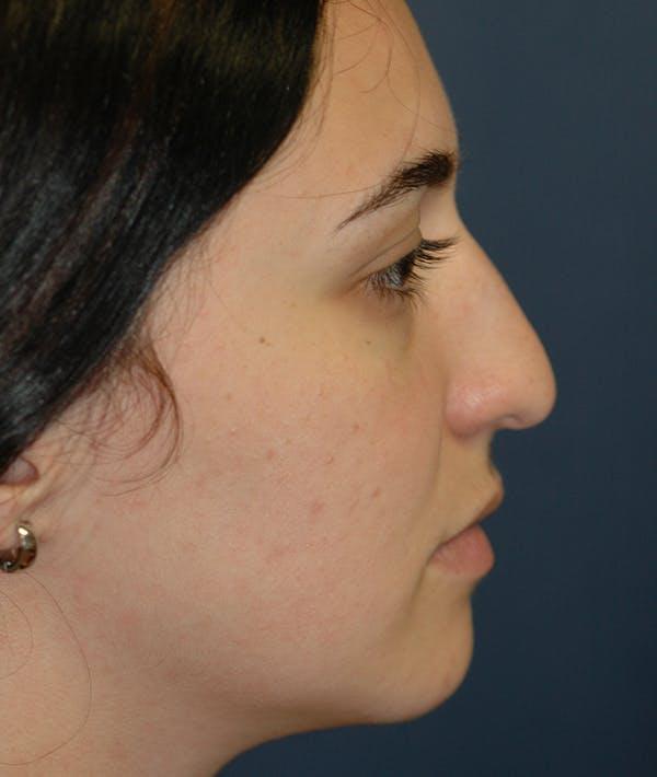 Rhinoplasty Gallery - Patient 14605622 - Image 5