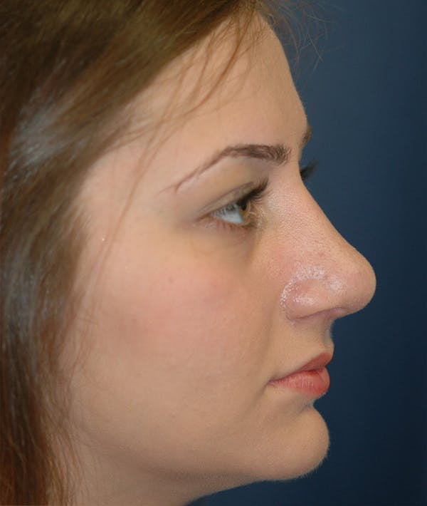 Rhinoplasty Gallery - Patient 14605623 - Image 6