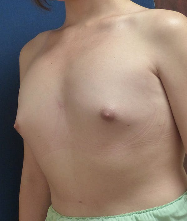 Feminizing Surgery Gallery - Patient 14605659 - Image 1