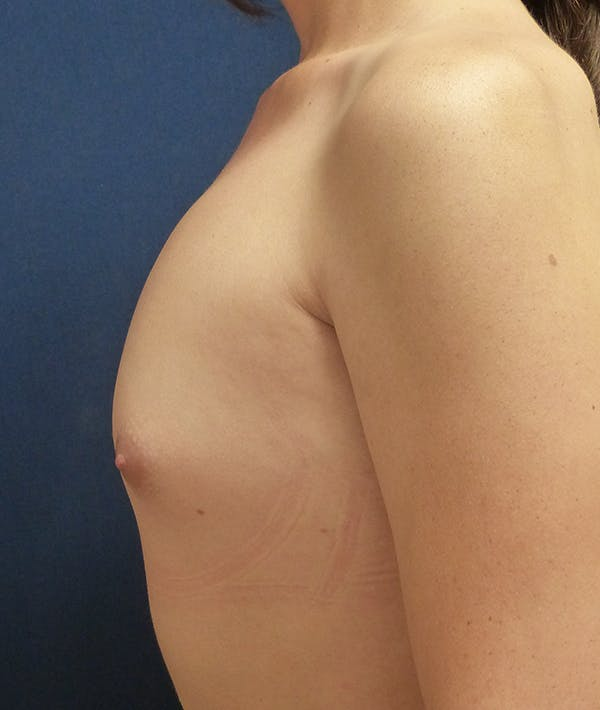 Feminizing Surgery Gallery - Patient 14605659 - Image 3