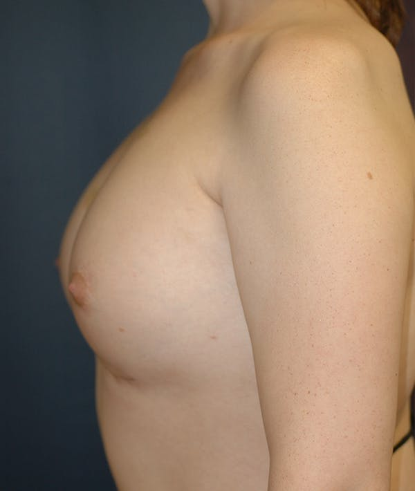 Feminizing Surgery Gallery - Patient 14605659 - Image 4