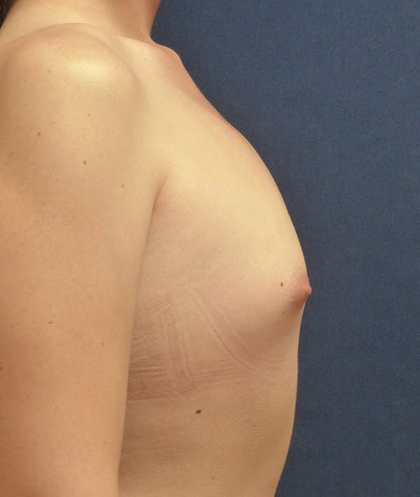 Feminizing Surgery Gallery - Patient 14605659 - Image 5