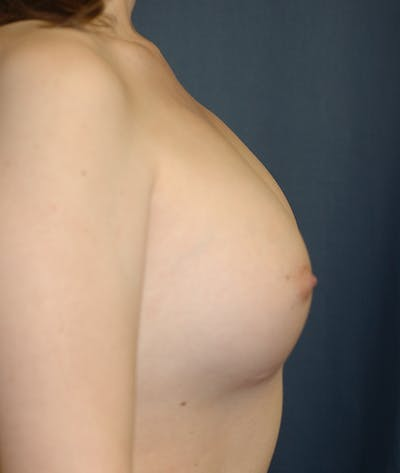 Feminizing Surgery Gallery - Patient 14605659 - Image 6