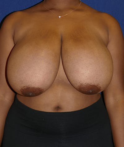 Breast Reduction Gallery - Patient 19493863 - Image 1