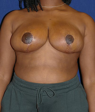 Breast Reduction Gallery - Patient 19493863 - Image 2
