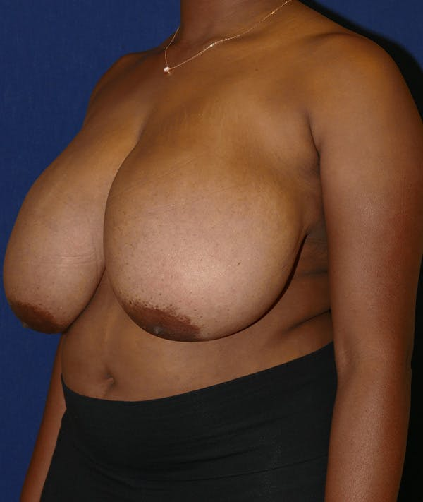 Breast Reduction Gallery - Patient 19493863 - Image 3