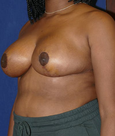 Breast Reduction Gallery - Patient 19493863 - Image 4