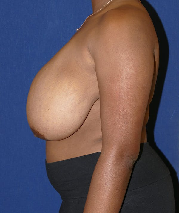 Breast Reduction Gallery - Patient 19493863 - Image 5